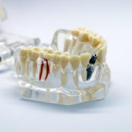 3D列印骨釘